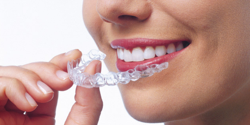 a lady smiling while inserting her invisalign trays
