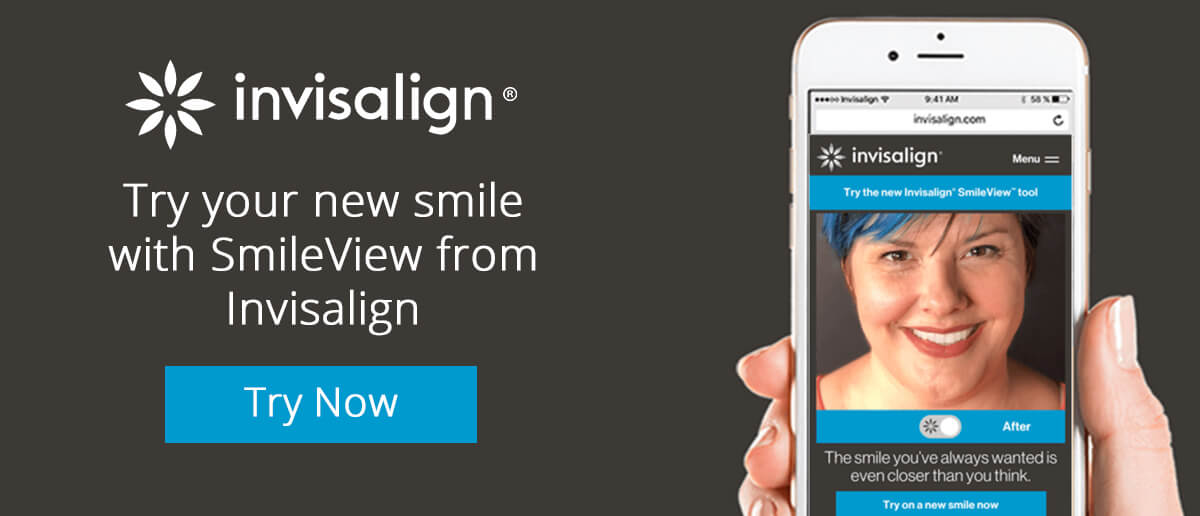 Try SmileView
